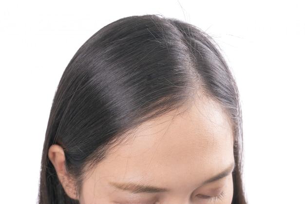 Junge asiatische frauen sorgen sich um problematischen haarausfall, kopfglatze, schuppen.