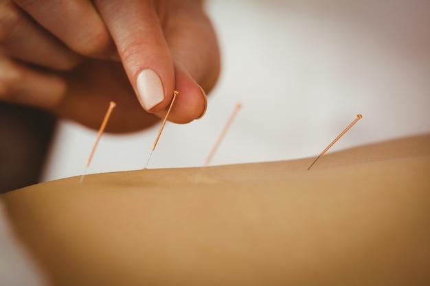 Junge frau, die akupunkturbehandlung erhält