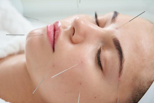 Junge frau, die eine akupunkturbehandlungstherapie auf ihrem gesicht in der alternativen medizin des spa-salons hat
