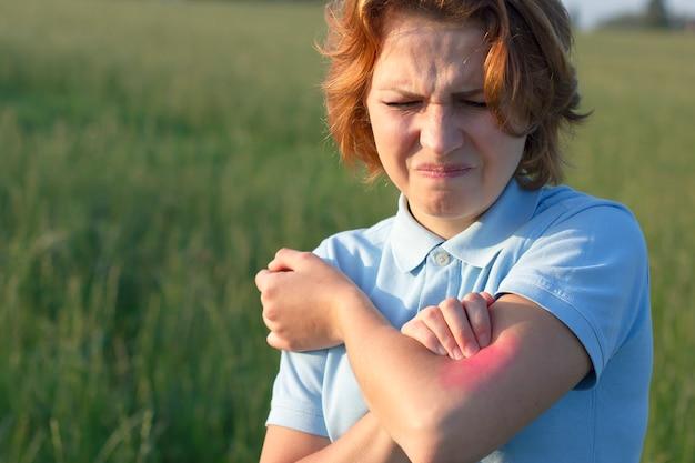 Junge frau, die sich am arm kratzt, unter juckreiz auf der haut leidet und an einem juckenden ort kratzt. allergie-ausschlag. rot um den juckenden bereich, herzen. allergische reaktion auf insekten, mückenstiche.