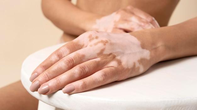 Junge frau mit vitiligo posiert