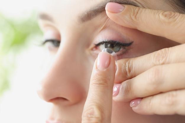 Junge frau setzt weiche kontaktlinsen auf das auge und wählt linsen für das sehkonzept