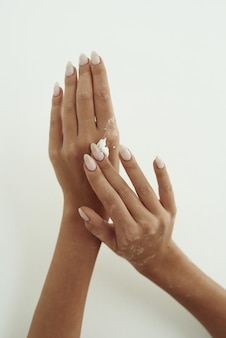 Junge frau verteilt handcreme auf ihren händen. das konzept der hautfeuchtigkeit, handpflege und faltenprävention.