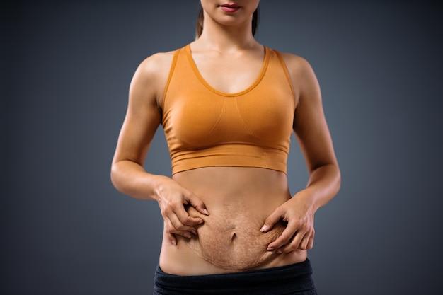 Junge mutter, die bauch voller schwangerschaftsstreifen nach der schwangerschaft hält.