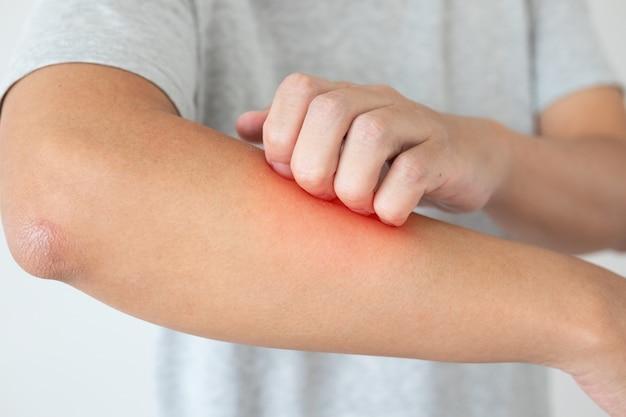 Junger asiatischer mann juckt und kratzt am arm von juckender trockener hautekzemdermatitis