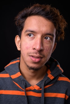 Junger asiatischer mann mit lockigem haar und akne, der kapuzenpulli gegen schwarzraum trägt