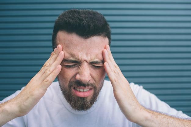 Junger mann hält hände auf der stirn. er hat kopfschmerzen. guy fühlt sich schrecklich. er leidet. isoliert auf gestreiftem nad blauem hintergrund.