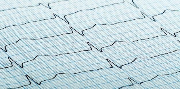 Kardiogramm (alias elektrokardiogramm, alias ekg) des herzschlags auf blauem gitterpapier