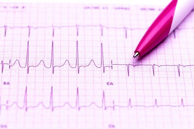 Kardiogramm und technischer stift