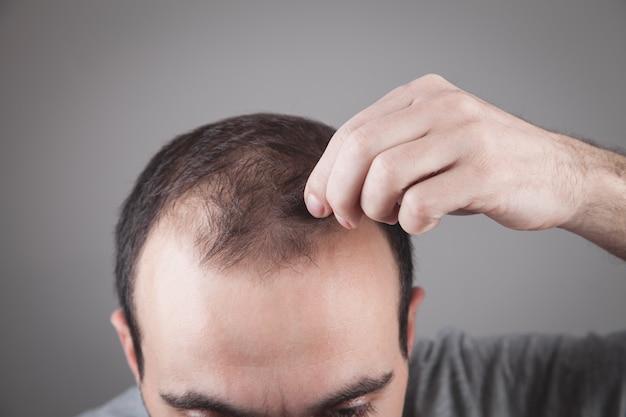 Kaukasischer mann, der seine haare überprüft. haarausfall problem