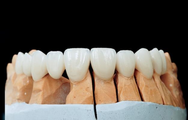 Keramikzähne mit dem implantat auf einem gipsmodell