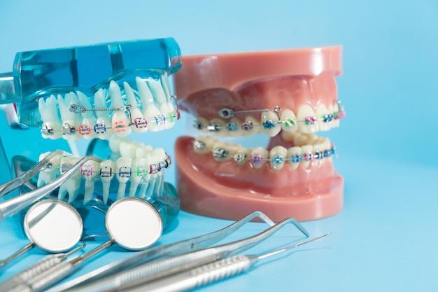 Kieferorthopädisches modell und zahnarztwerkzeug - demonstrationszahnmodell der kieferorthopädischen varietäten