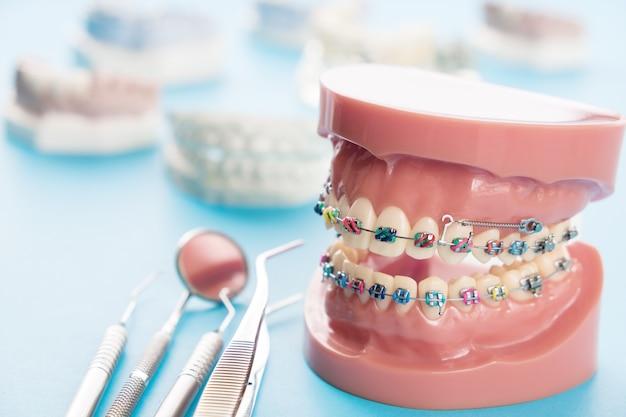 Kieferorthopädisches modell- und zahnarztwerkzeug - demonstrationszahnmodell der vielzahl der orthodontischen