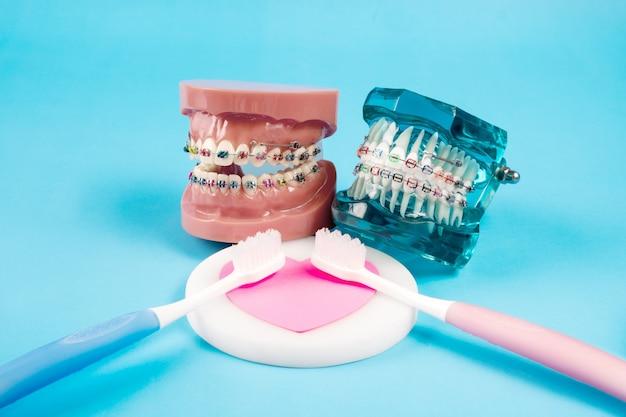 Kieferorthopädisches modell und zahnarztwerkzeug - demonstrationszahnmodell für verschiedene kieferorthopädische klammern oder zahnspangen