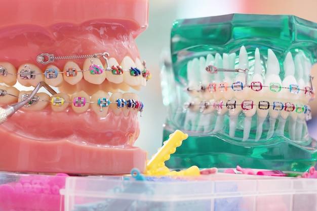 Kieferorthopädisches modell