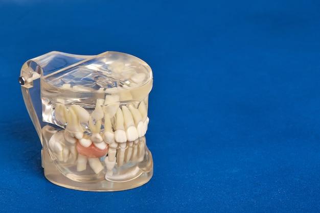 Kieferorthopädisches zahnmodell für menschliche zähne mit implantaten, zahnspangen