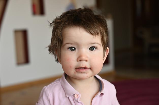 Kind hat ihr gesicht mit herpes besprüht