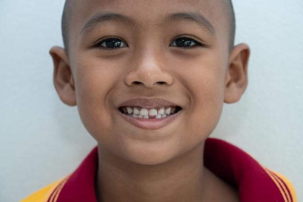 Kleiner junge, der mit den gebrochenen zähnen lächelt