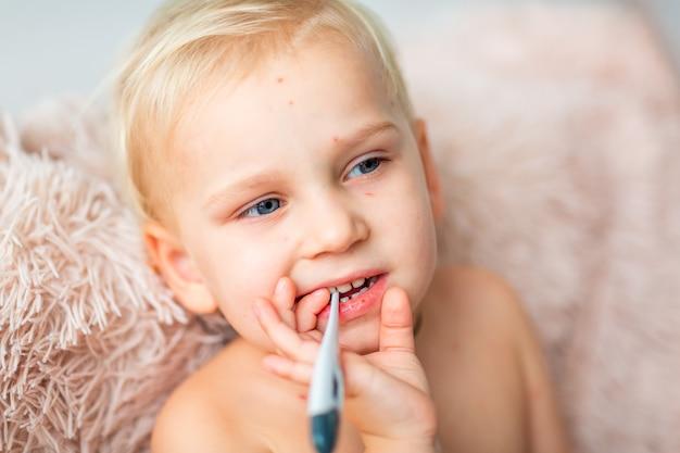 Kleiner junge mit varizellenvirus oder windpockenblasenausschlag, der seine temperatur zu hause überprüft