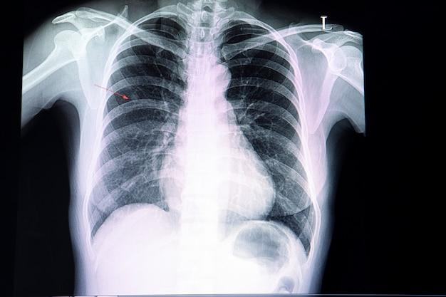 Kleiner knoten in der lunge