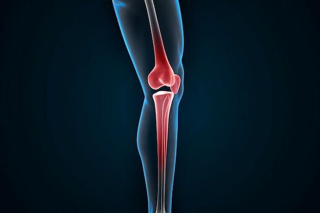 Kniegelenksschmerzen