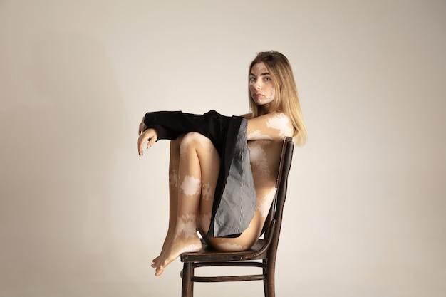 Körper der schönen jungen frau mit vitiligo. autoimmunerkrankung. mangel an hautpigmentierung. inklusive schönheit.