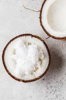 Kokosnussöl in einer kokosschale auf grauem hintergrund, draufsicht.