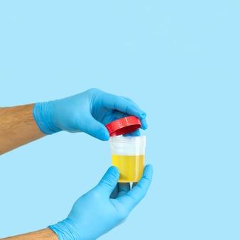 Krankenschwester oder medizinischer mitarbeiter öffnen urinprobenbehälter für medizinische urinanalyse