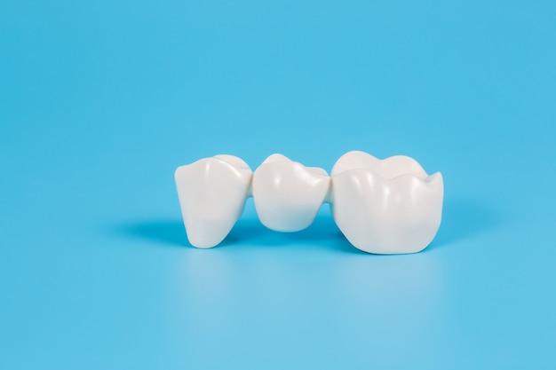 Kunststoff-zahnkronen, nachahmung einer zahnprothese einer zahnbrücke für drei zähne auf blauem grund.