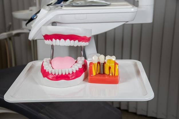 Kunststoff-zahnkronen, nachahmung einer zahnprothese einer zahnbrücke für drei zähne mit einem metallschraubenimplantat