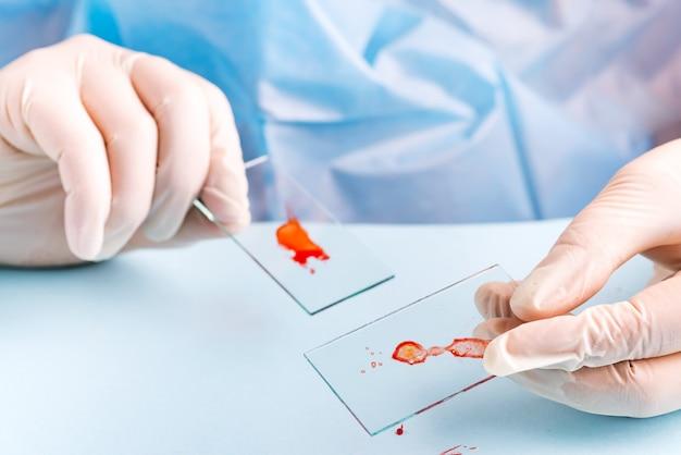 Labortechniker, der menschliches rotes blut auf objektträgerglas für virustest tropft