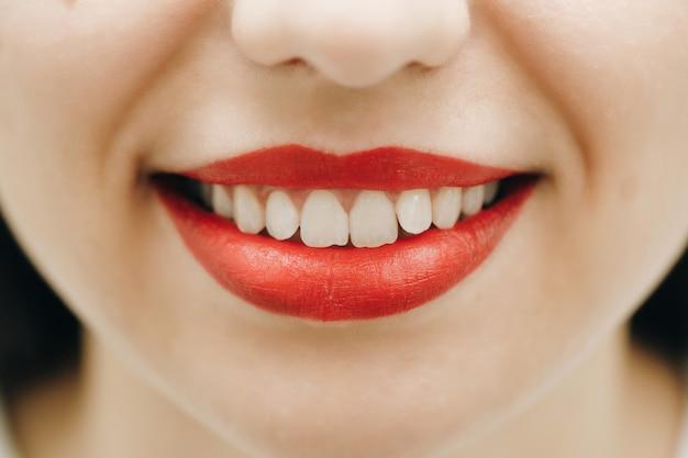 Lächeln sie nach dem aufhellen der zähne.