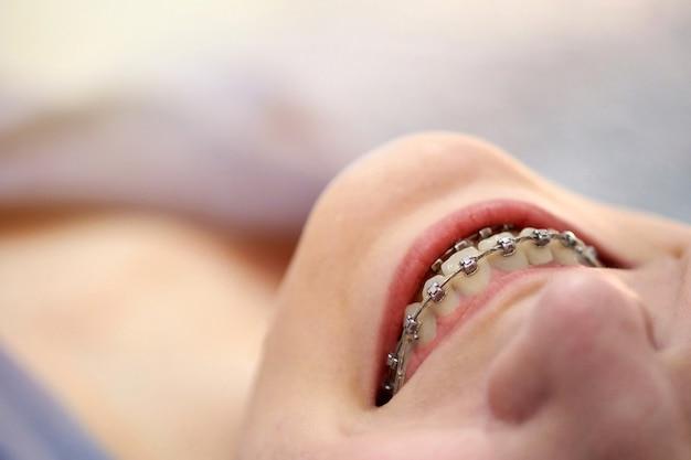 Lächelnde junge frau mit klammern an den zähnen schließen