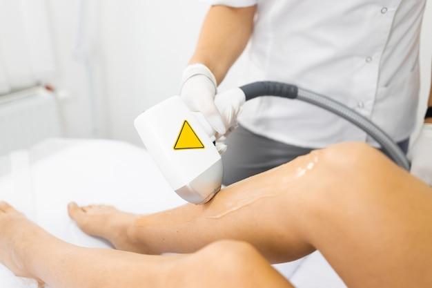Laser-haarentfernung an weiblichen beinen
