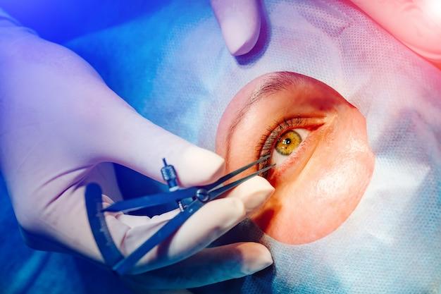 Laser-sehkorrektur