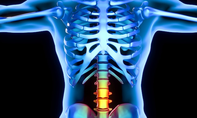 Lendenwirbelsäulenteil, der schmerzen verursacht