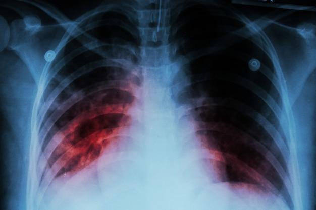 Lungen-tuberkulose (tb). die thoraxröntgenaufnahme zeigt eine alveoläre infiltration an beiden lungenflügeln