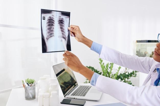 Lungenarzt untersucht röntgenaufnahme des brustkorbs