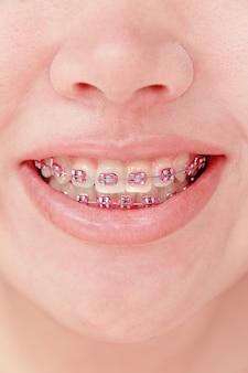Mädchen, das mit klammern lächelt