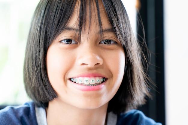 Mädchen mit zahnmedizinischen klammern lächelnd und glücklich