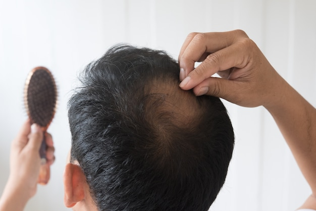 Männer sind besorgt über haarausfall.