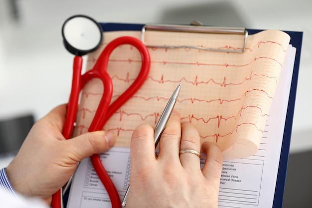 Männliche arzthand halten kardiogrammkarte