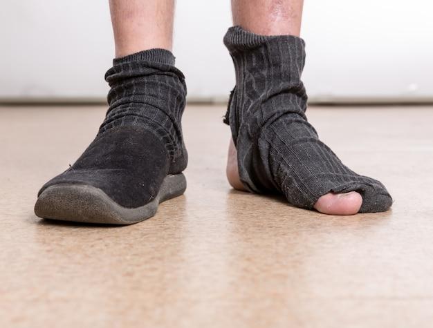 Männliche füße mit socke im loch
