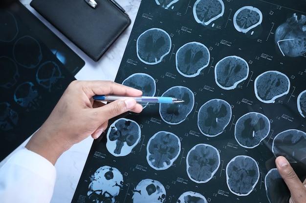 Männlicher arzt halten ich analyse röntgenaufnahme nahaufnahme.