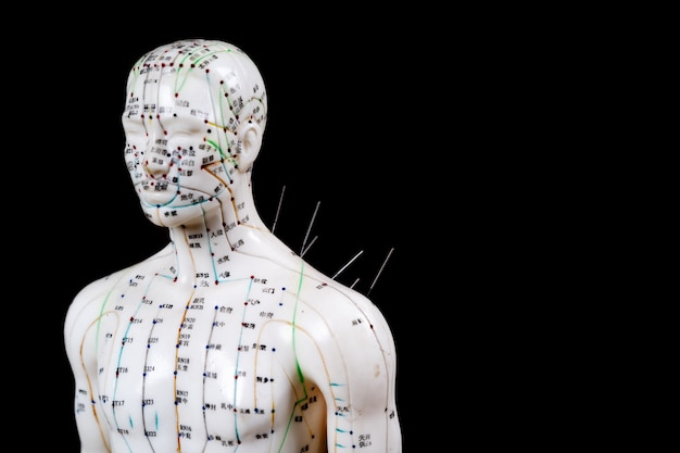 Männliches akupunkturmodell mit nadeln