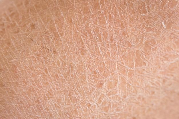 Makro trockene haut (ichthyosis) detail