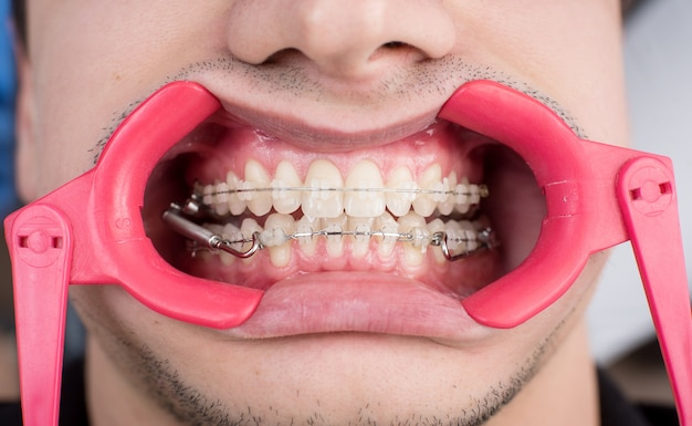 Makroaufnahme von weißen zähnen mit zahnspangen und zahnspreizer in der zahnarztpraxis. kieferorthopädische behandlung. zahnheilkunde