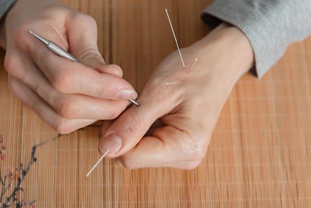 Mann, der akupunkturbehandlung zur schmerzlinderung verwendet