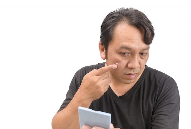 Mann, der creme auf gesicht mit melasma aufträgt