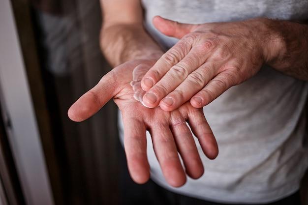 Mann, der feuchtigkeitscreme auf seine hand mit sehr trockener haut und tiefen rissen mit sahne wegen des waschens von alkohol setzt